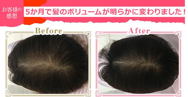 1か月で髪のボリュームが明らかに変わりました!