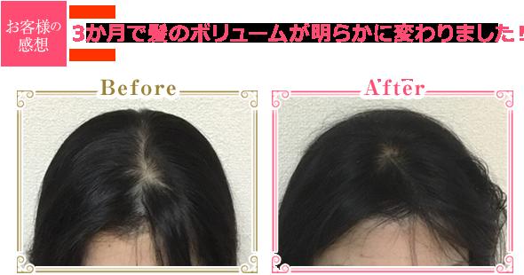 3か月で髪のボリュームが明らかに変わりました!